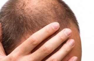 טיפול בטריכוטילומניה